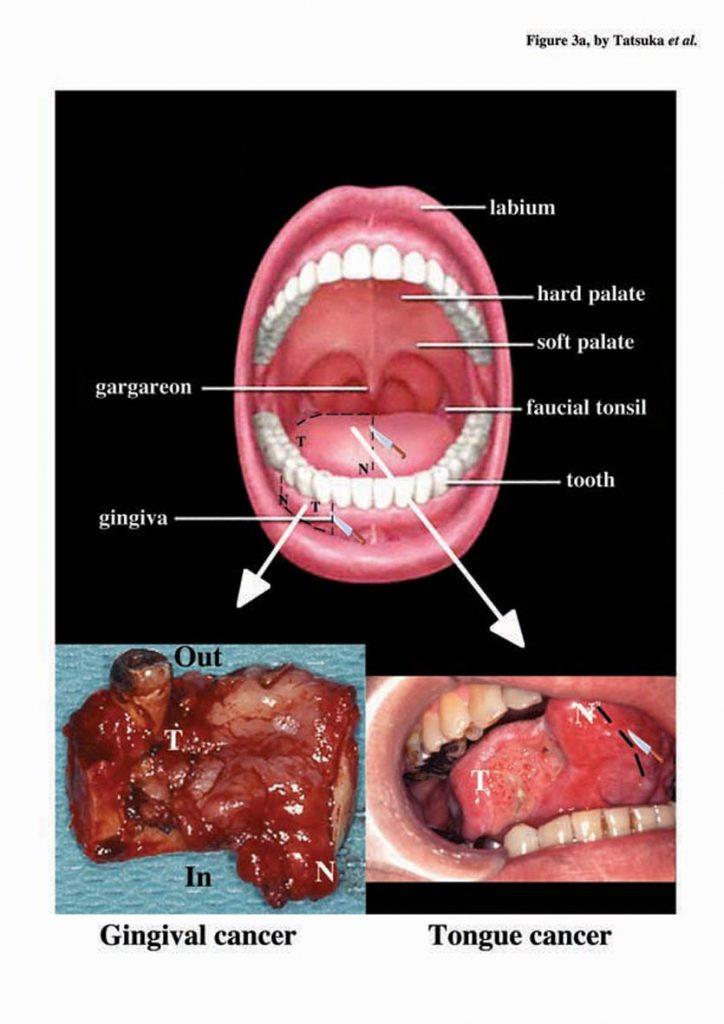 virus del papiloma y tabaquismo