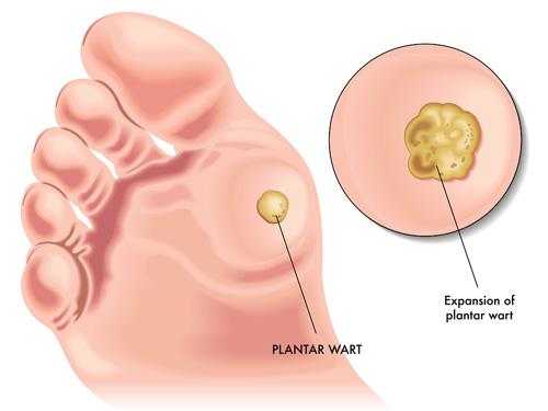 hpv impfung manner nebenwirkungen ovarian cancer jobs