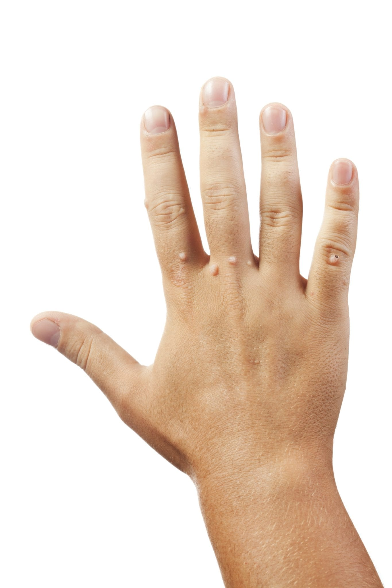 warts on hands are caused by papiloame oncogene