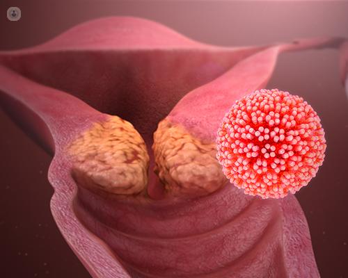 Does human papillomavirus cause genital. Înțelesul