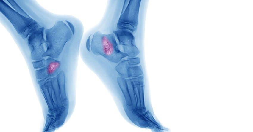 can hpv cause bone cancer lesion papillomavirus et grossesse