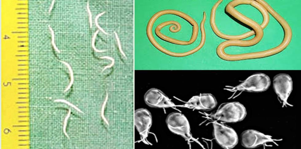 Dientamoeba Fragilis diéta tippek - coboramlaprima.ro - Oxiuros causa diarrea