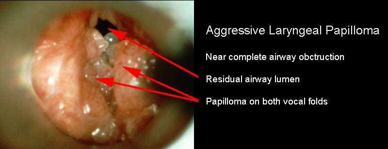 papillomatosis therapy tratamentul condilomului cauzei