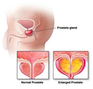 Neoplasmul vezicii urinare (cancer de vezica)
