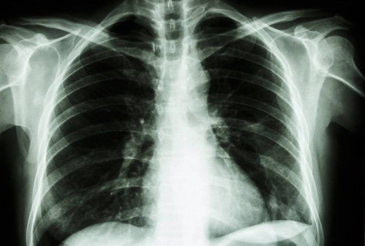 cancer la plamani ce inseamna antigen giardia que es