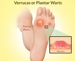 Hpv warts on feet. Hpv virus and warts on feet. Istoricul fișierului