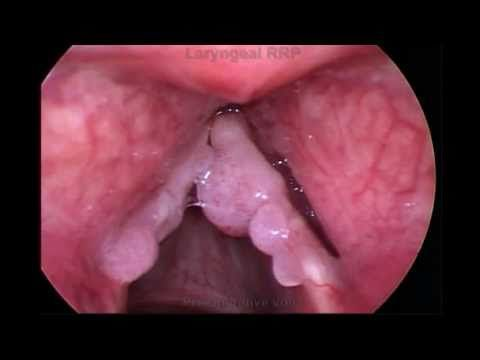 papillomatosis therapy papillomas teeth