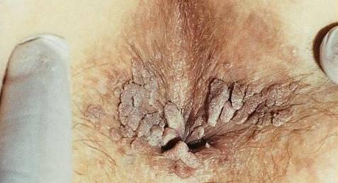 Tratamentul home pentru condiloame - Infecție