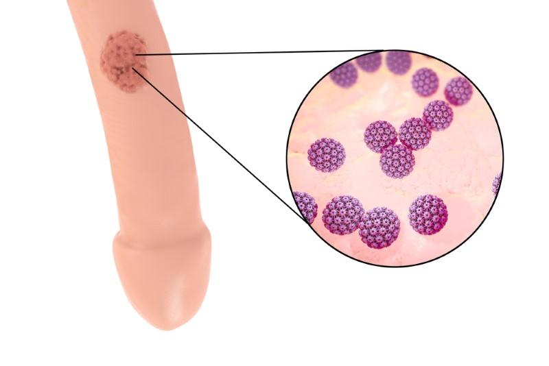 Hpv virus ansteckend - Hpv virus ansteckend Papiloma virus ansteckend