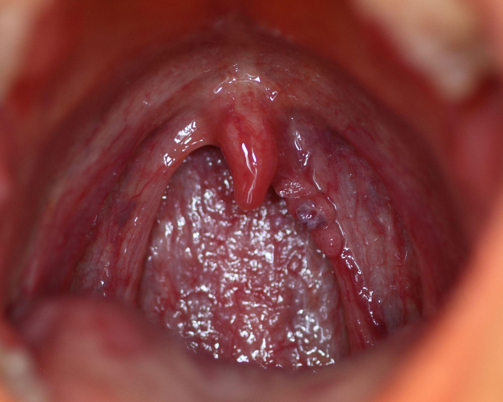 L papillomavirus symptome, Tot ce trebuie sa stii despre HPV: Simptome & Tratament
