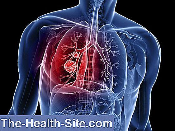 cancerul de colon este transmisibil
