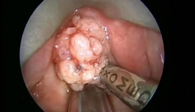 microdebrider laryngeal papillomatosis