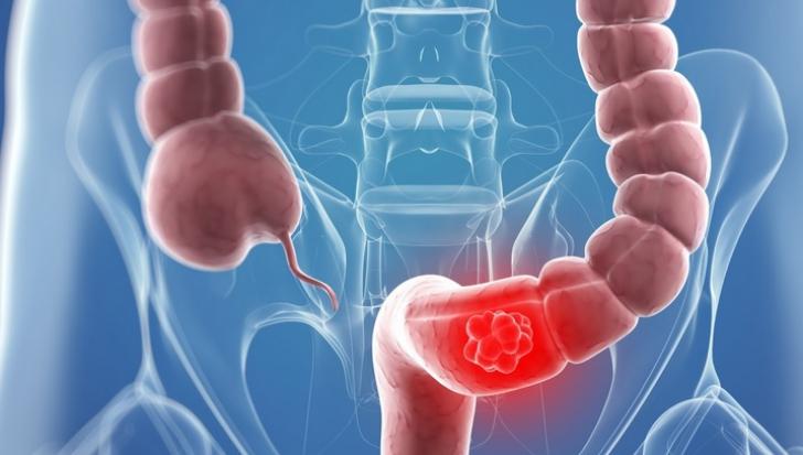 Cancerul colorectal la varstnici   Centru Oncologie Severin