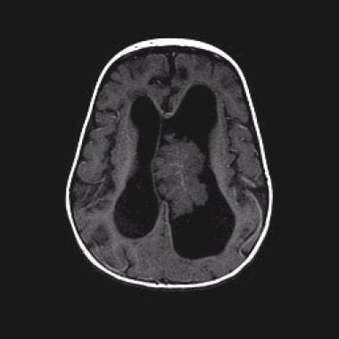 choroid plexus papilloma neonatal se consumă viermele