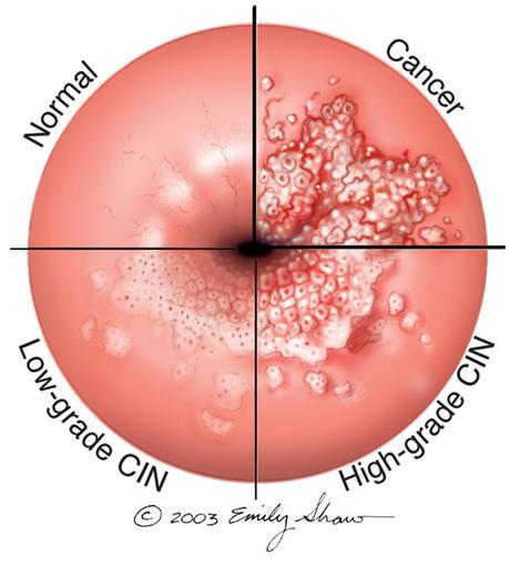 can hpv virus cause rectal cancer)