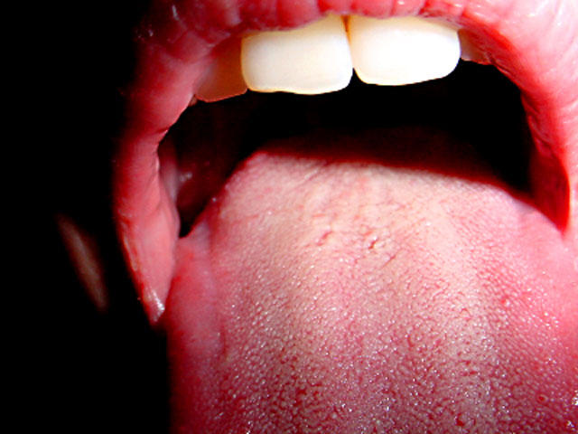 Hpv warts tongue treatment. Removing papilloma from tongue