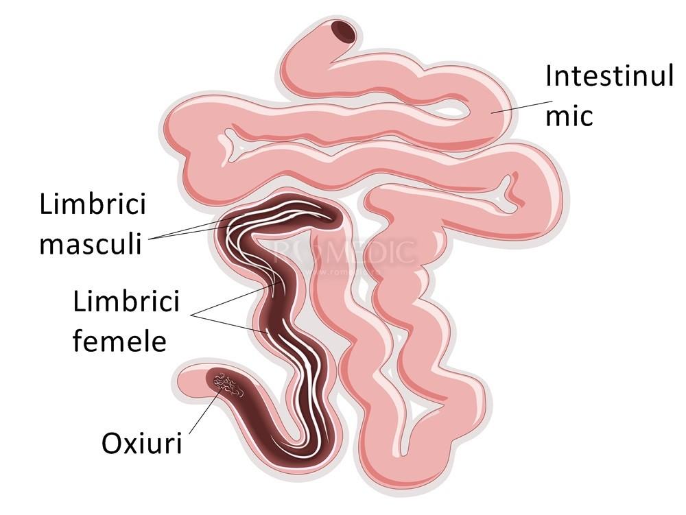 viermișori simptome