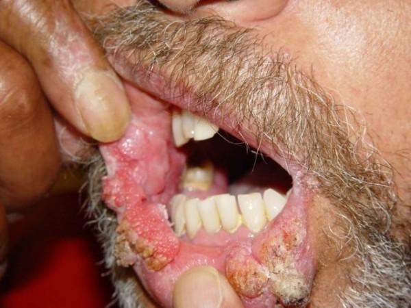 polipi și condilomi ai anusului papilom pe mucoasa ochiului