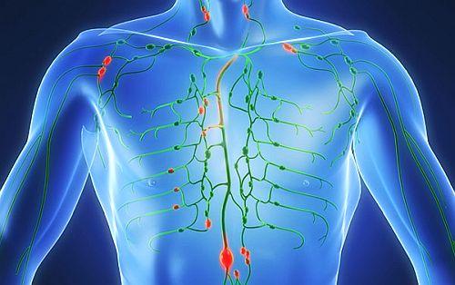 Ce este limfomul? - Simptome, Tratament - Medic Chat