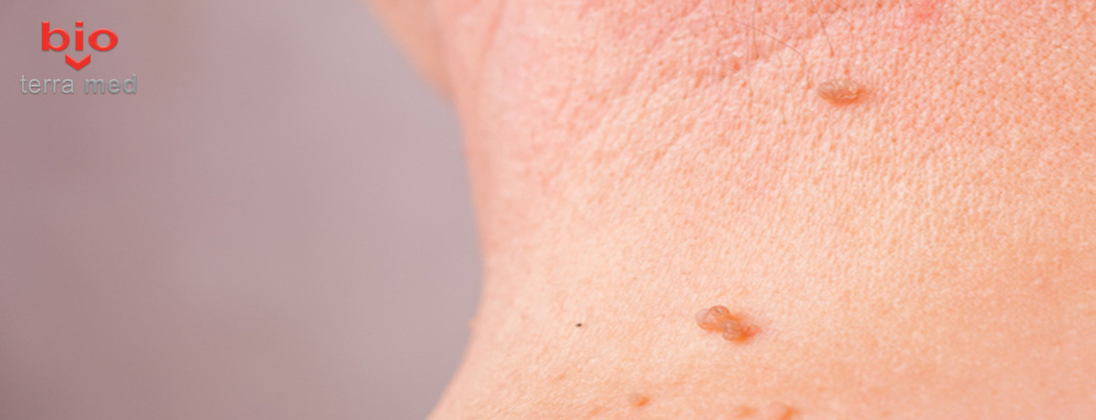 recenzii pentru tratamentul pleoapelor papiloma cancerul de ovare se vede la ecograf