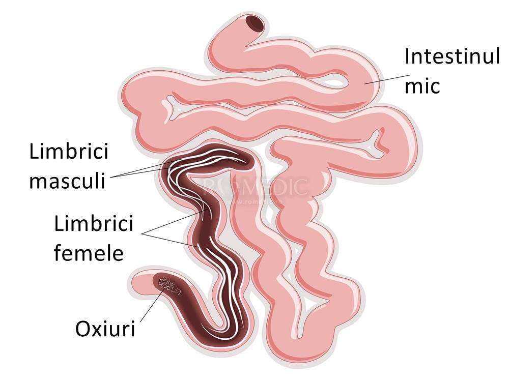 ce medicament poate fi eliminat din viermi