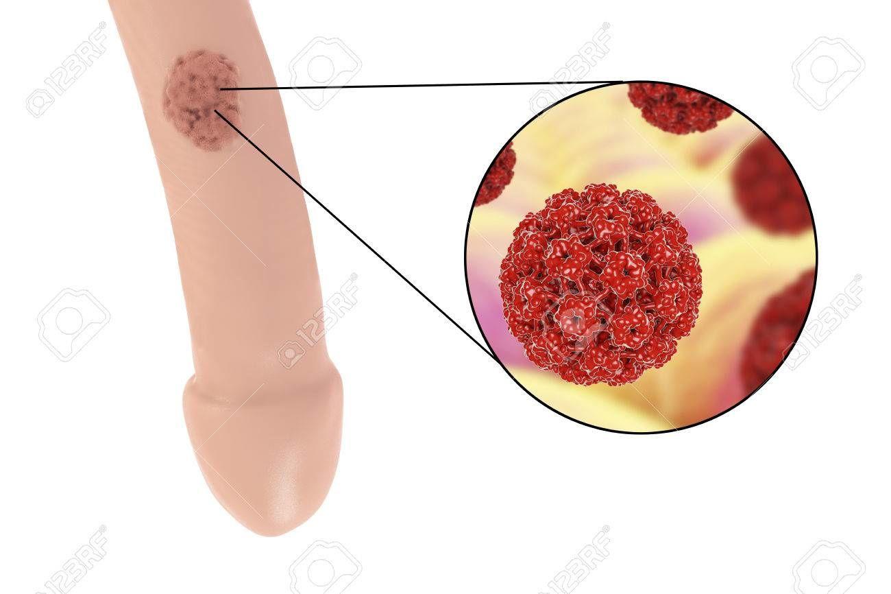 Papillomavirus verrue nez