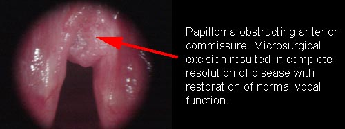Hpv prevention nhs - coboramlaprima.ro Hpv prevention nhs