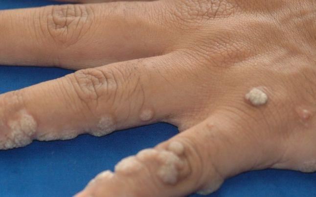 Neg pe deget - cauze, tratament, sfaturi utile