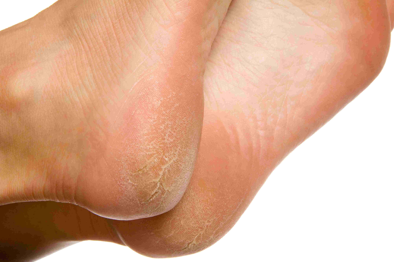 hpv warts on bottom of feet papilloma virus cure per l uomo