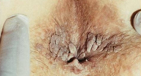papiloma tratament