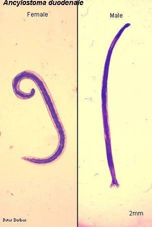 prevenirea pilulelor parazitare tipuri de tratament pentru verucile genitale
