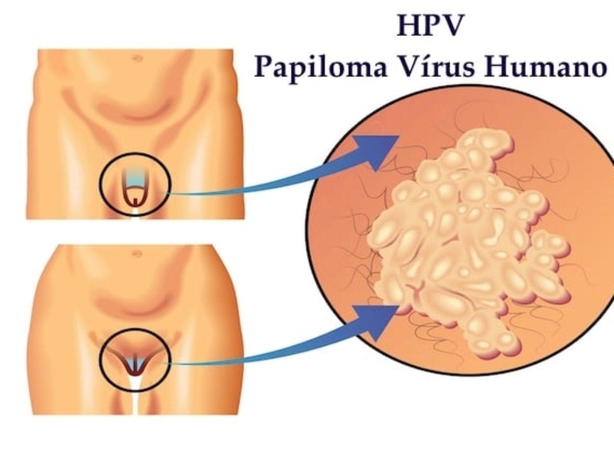 papillomavirus antibiotique