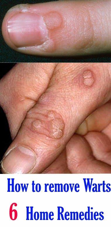 papillomavirus tratament