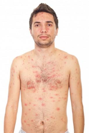 Degetele Covid și erupțiile cutanate, simptome în infecția cu noul coronavirus
