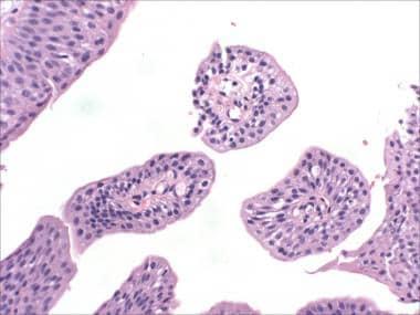 Papilloma in bladder cancer
