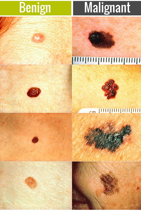 Skin cancer benign mole - Warts and skin cancer - Skin cancer benign vs malignant