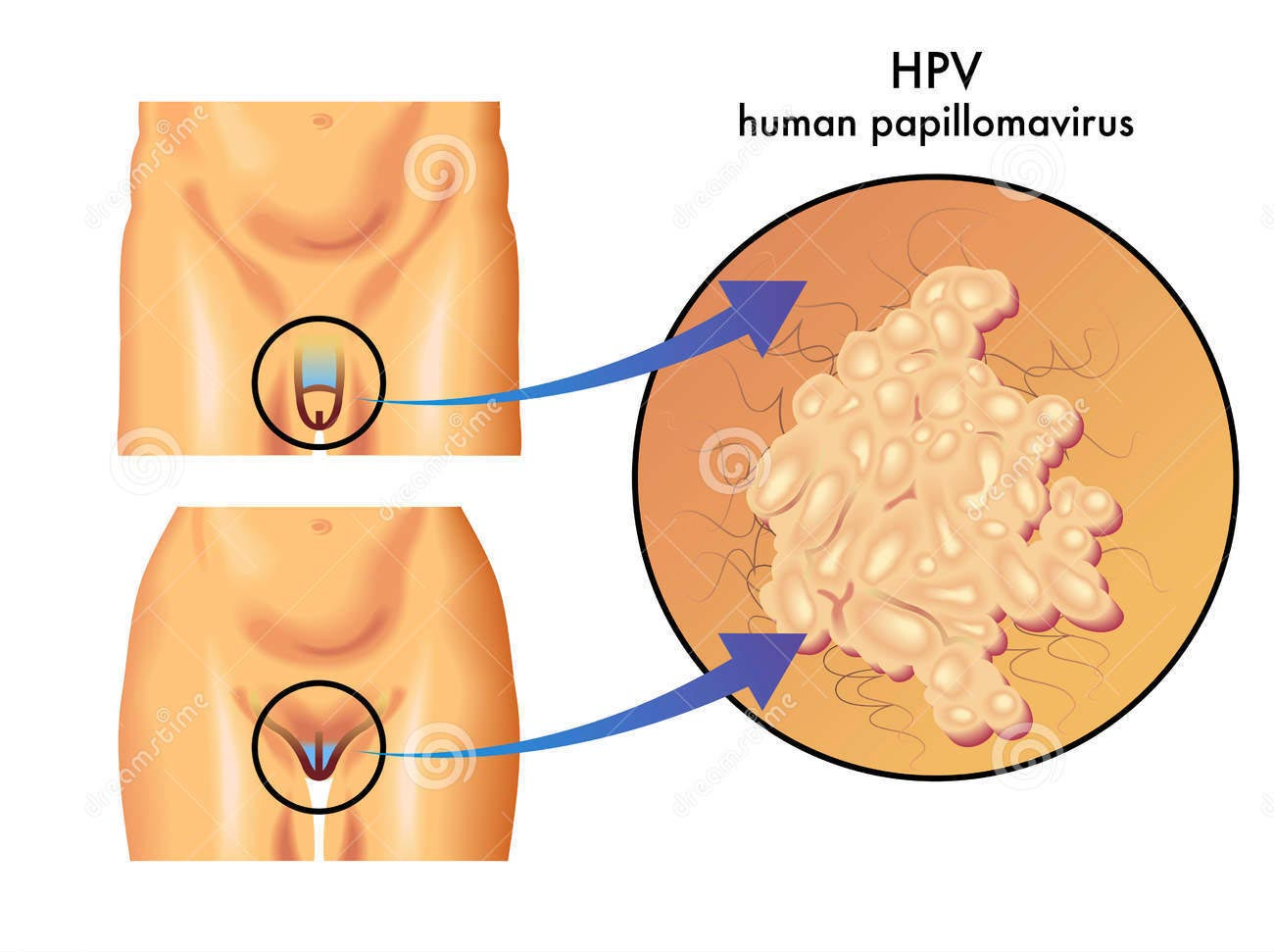 Papilloma virus nelluomo immagini,