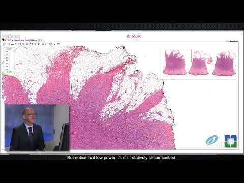 stadiile dezvoltării helmint i papilloma virus