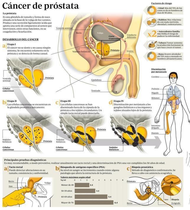 cancer de prostata avanzado sintomas