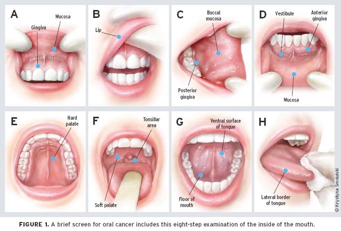 human papillomavirus mouth treatment înainte de a îndepărta negii genitali