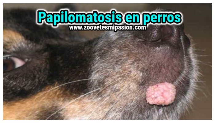 Vestibular papillomatosis dermnet Vestibular papillomatosis thrush