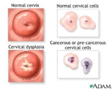 Tratamentul papilomatozei vulvare, Ce sunt papiloamele?