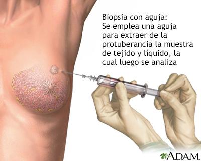 papiloma senos mujeres papillomas virus femme