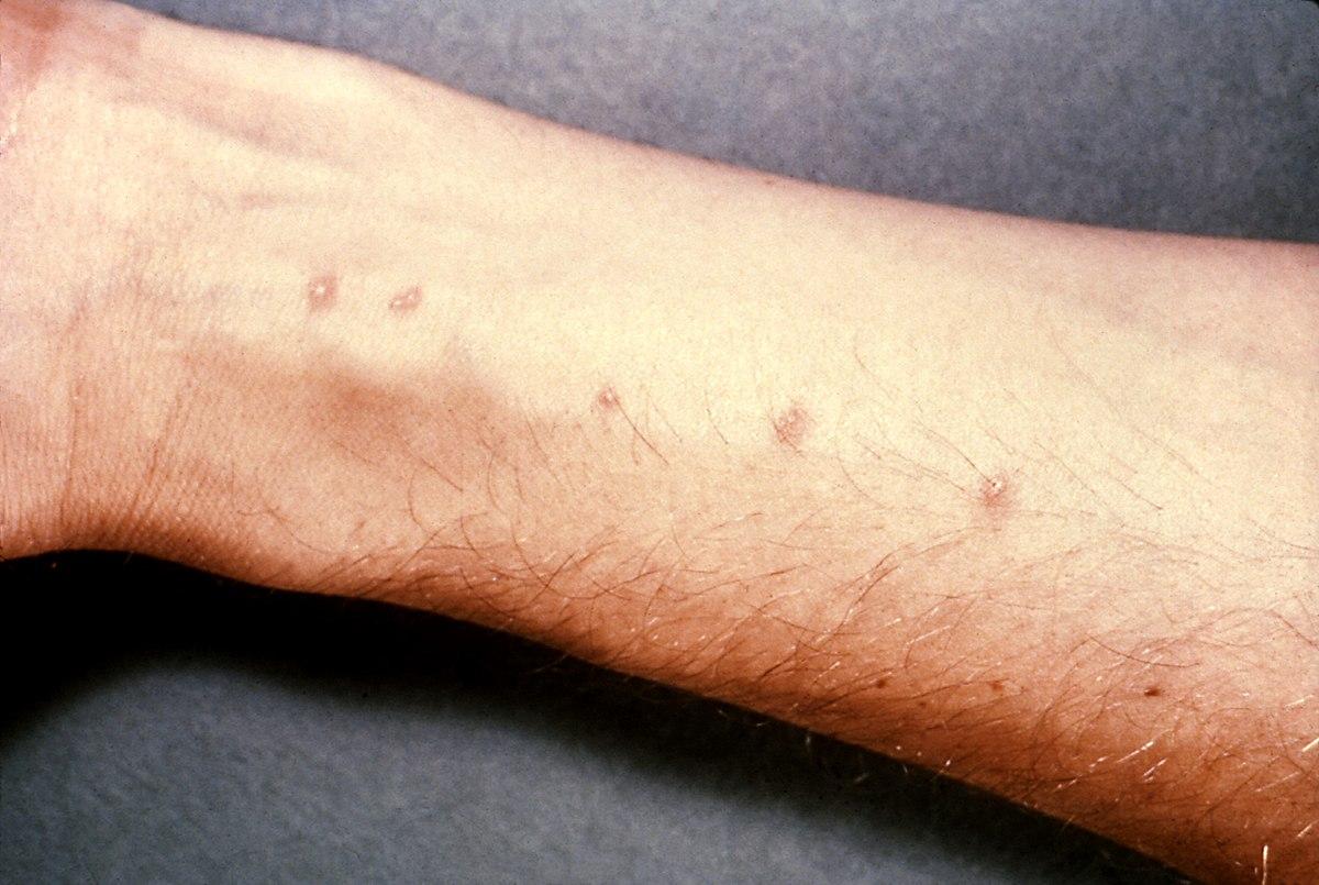 Schistosomiasis q es Schistosomiasis fact sheet
