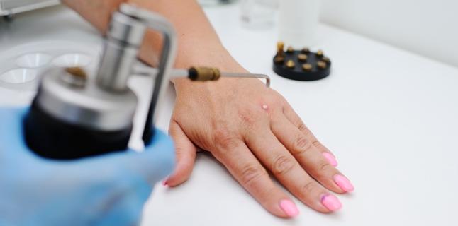 Dermatita pe mâini: tratament, remedii populare, cauze și tipuri de dermatită - Negii