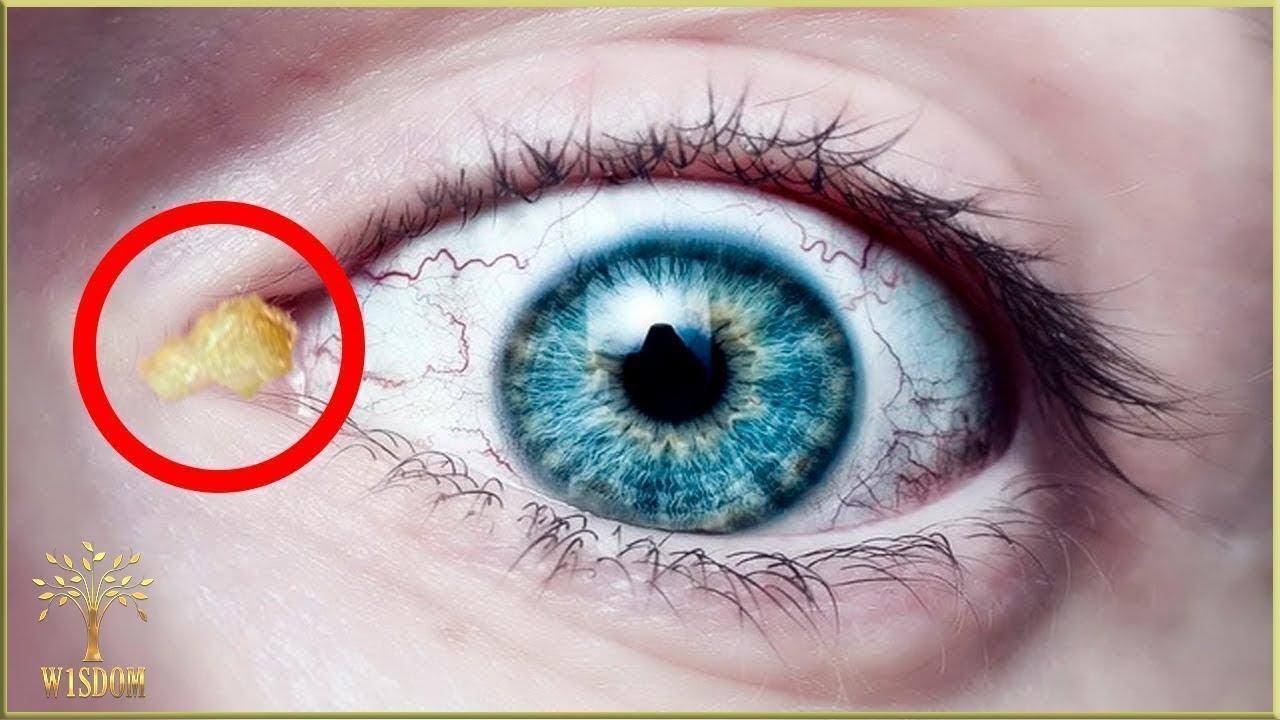 ce viermi sunt în ochii ei)