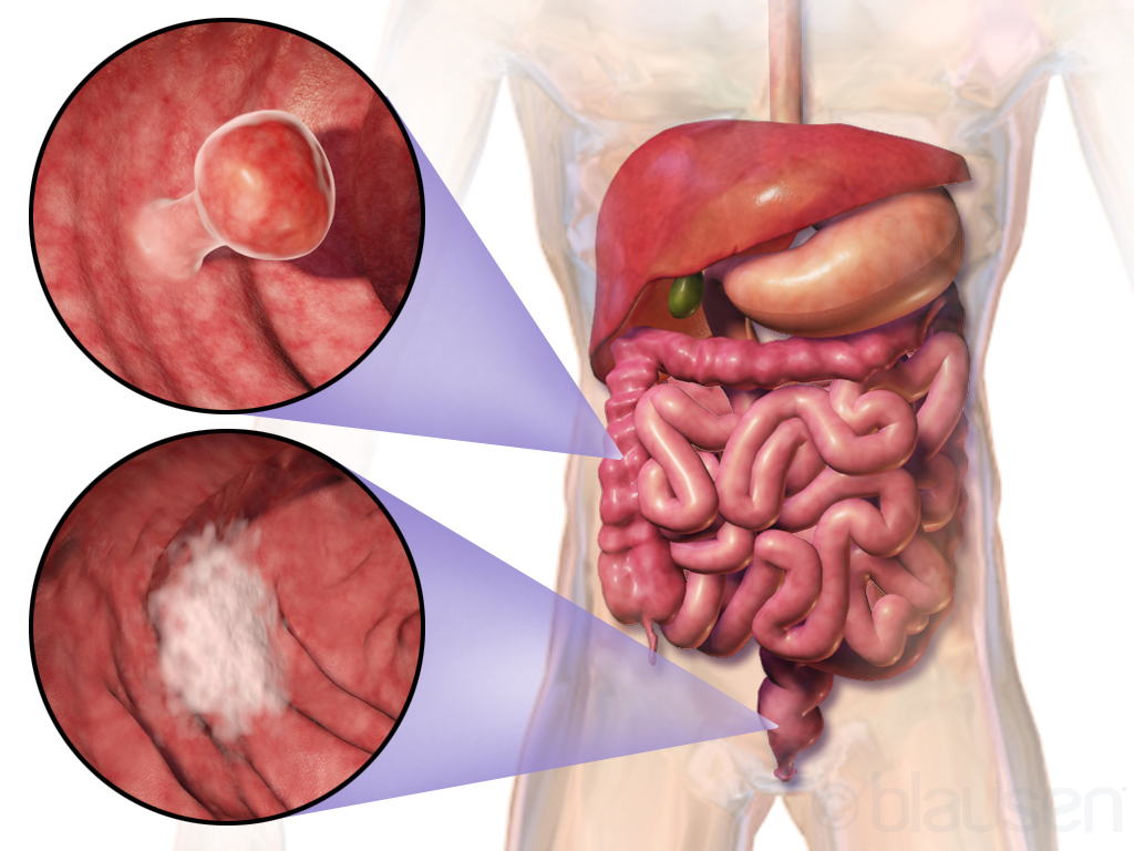 cancerul colorectal definitie