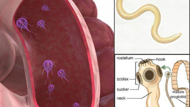 Ovarian cancer abdominal drain,