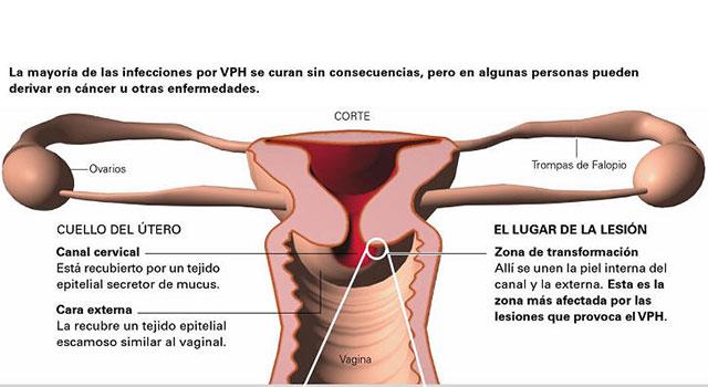 remedii naturiste pentru eliminarea parazitilor intestinali que es cancer de ovario