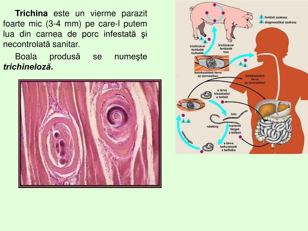 Giardioza | Gastroenterologie | Ghid de boli
